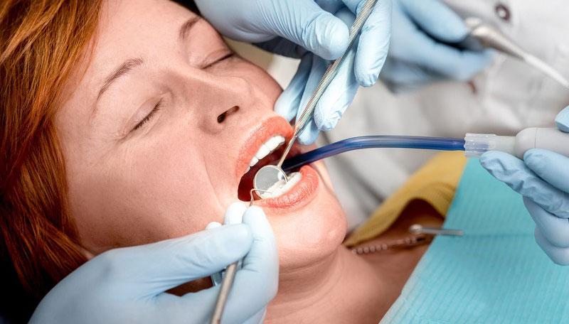 fogászati kezelés